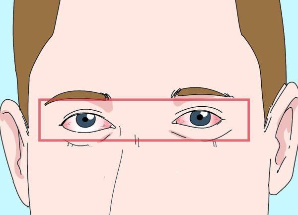 Обратите внимание на воспаленные глаза